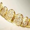 Стоматологи в дубаї створили найдорожчу посмішку в світі